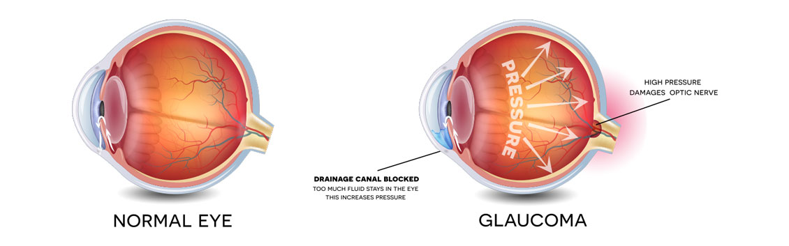 glaucoma-image RJK Optometry Coffs Harbour Optometrists