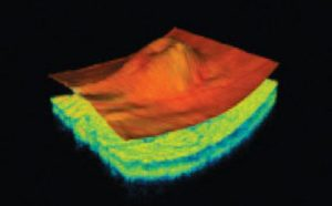 latest technology used tomography-at-RJK-optometry-coffs-harbour-2